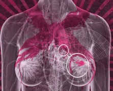 Hochaggressiver Brustkrebs und CBD