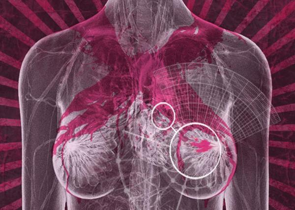 Hochagressiver Brustkrebs und CBD