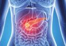 CBD könnte die Überlebensrate bei Pankreaskrebs verbessern